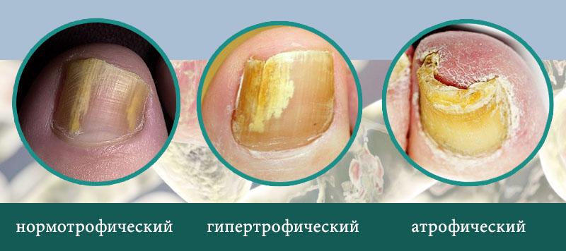 Виды ногтевого грибка