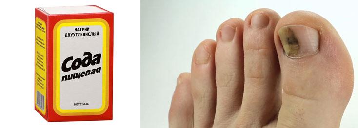 Сода против ногтевого грибка